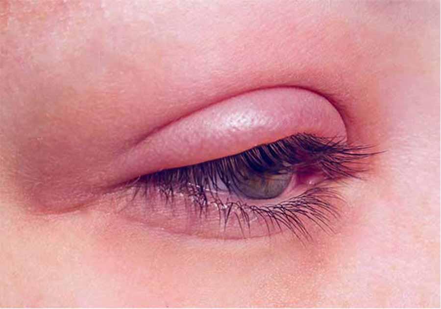 التهاب چشم از عوارض لیفت مژه