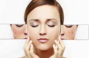 آموزش آرایش برای مبتلایان به اگزما