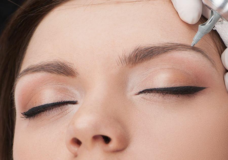 تأثیر میکروپگمنتیشن بر پوست