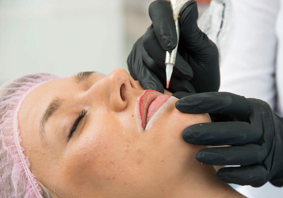مراقبت های بعد از میکروپگمنتیشن لب