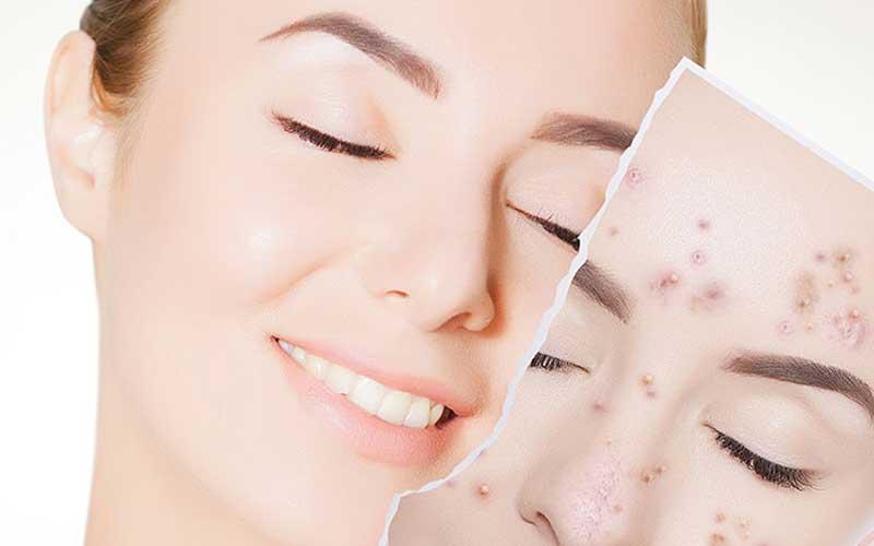 درمان های خانگی برای رفع جوش صورت