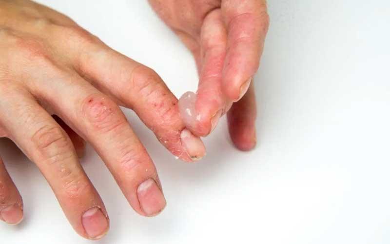 مراقبت از ناخن پسوریازیس
