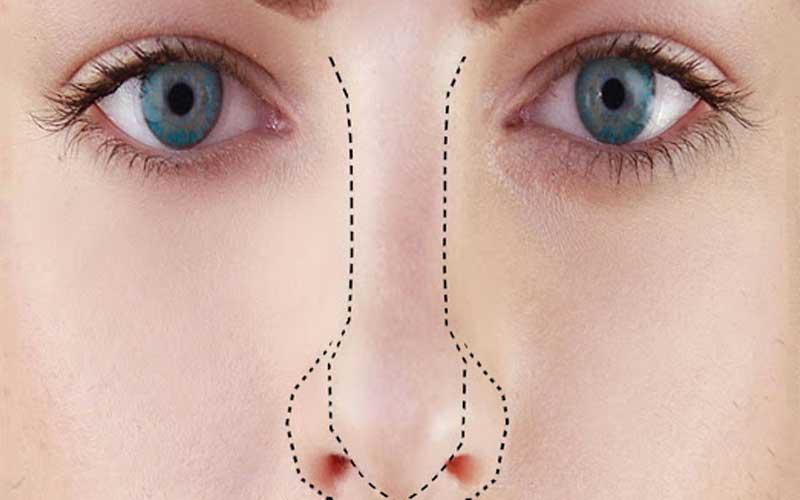 پلاسما جت بینی یا پلکسر بینی