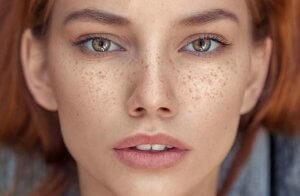 نکات مهم کاهش لک های پوستی و میلیا