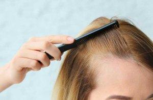 ریزش مو با ریشه