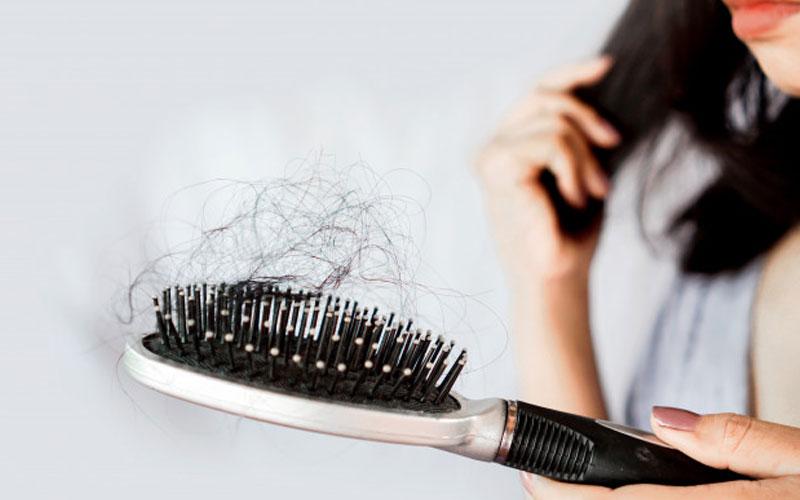 ریزش مو در شیردهی