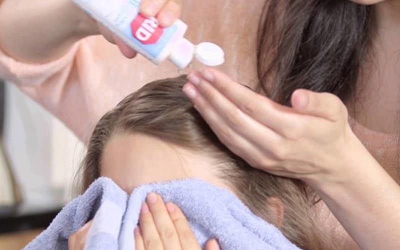 روش درمان شپش سر