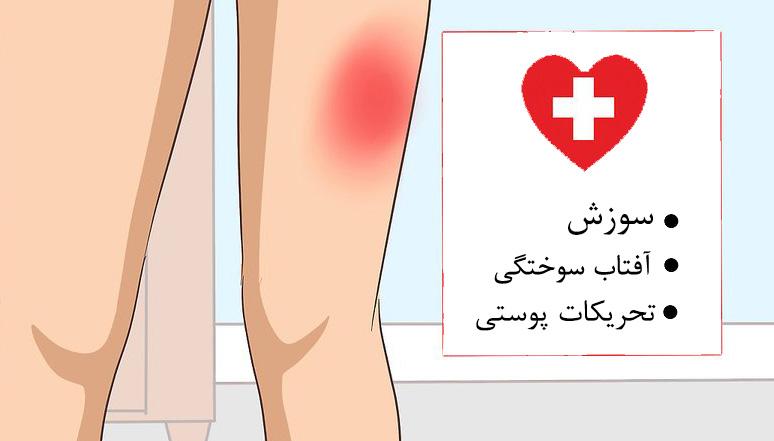 بررسی تحریکات پوستی