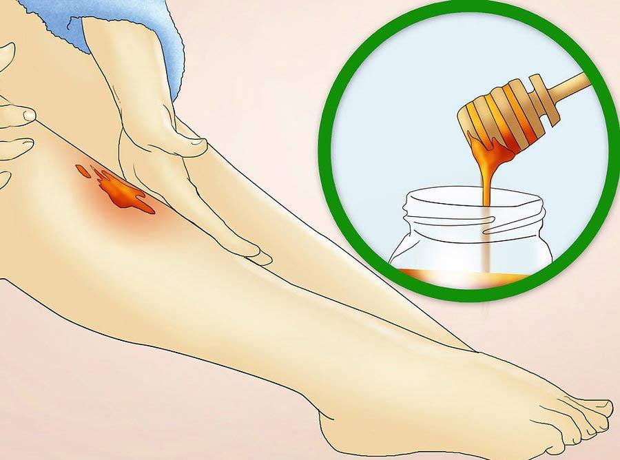 تهیه ماسک عسل برای کاهش التهاب پوست