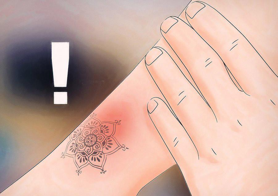 درک خطرات جهت جلوگیری از حساسیت پوستی در استفاده از حنا